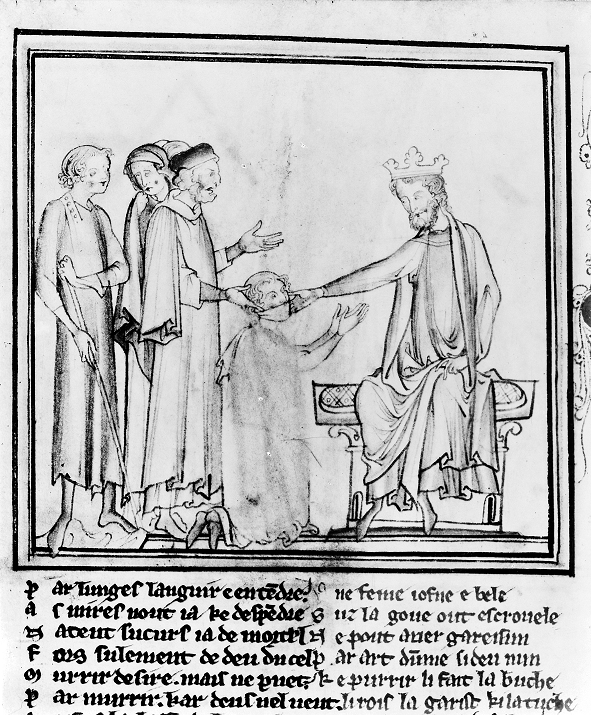Edward the confessor touching for the evil